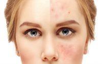 Chica con acné