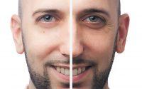 Hombre antes y después de las ojeras