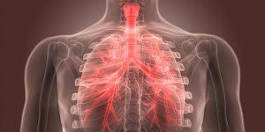 Radiografía de pulmones