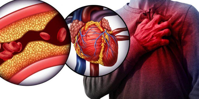 reduce el nivel de colesterol
