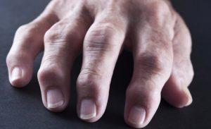 que es la osteoartritis