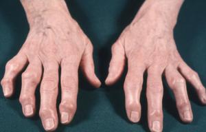 que sabes de la osteoartritis