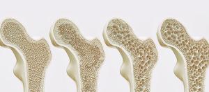 se cura la osteoporosis